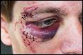 Brute roofoverval op Nederlandse vrachtwagenchauffeur in Keulen
